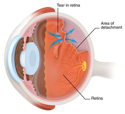 Detached Torn Retina Chippewa Valley Eye Clinic
